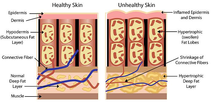 celulitida a koža