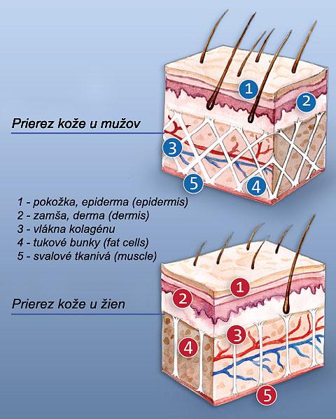 Pokožka ženy a celulitída